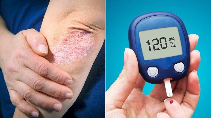 DIABETES TIPE 1 DAN OBAT DIABETES SELAMA SEHARI